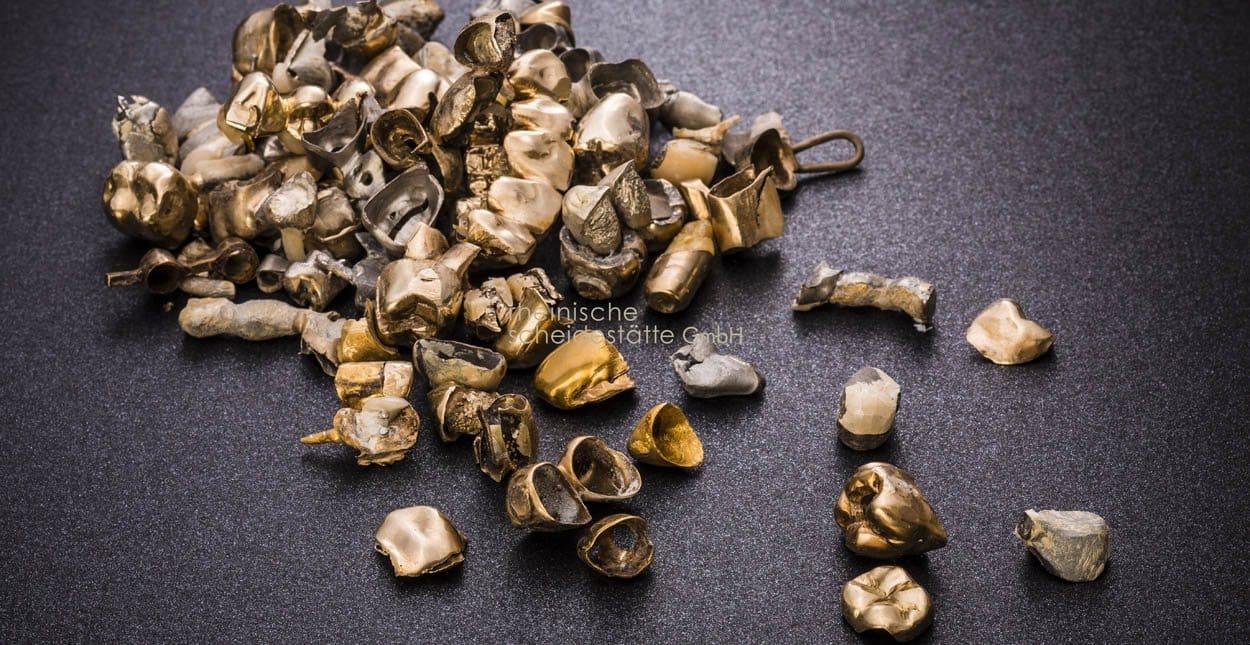 zahngold verkaufen muenster