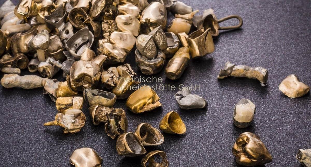 zahngold-verkaufen-stuttgart-preis